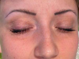 LASER ÄSTHETIK INSTITUT Permanent make-up Entfernung. Vor der Behandlung